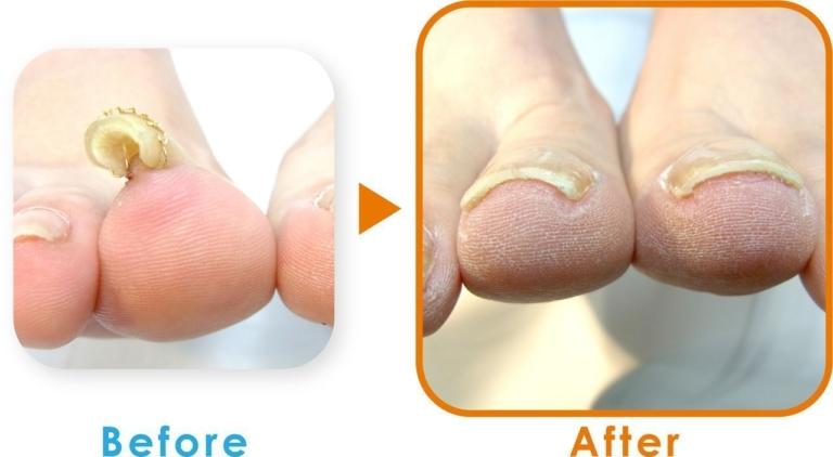 登米巻き爪の症例1