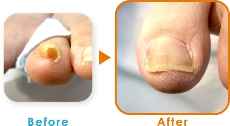 登米巻き爪の症例2