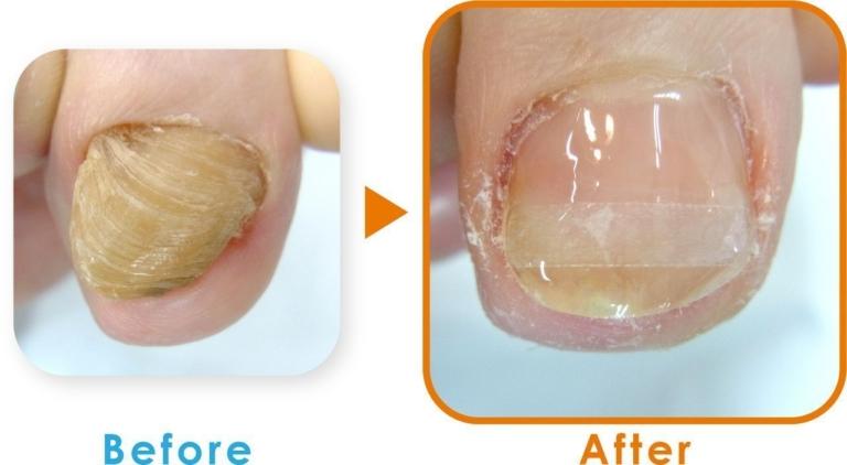 登米巻き爪の症例3