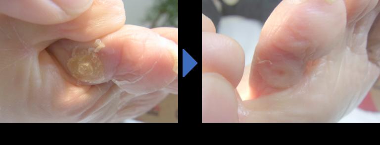 登米巻き爪矯正院タコとウオノメ施術前後写真