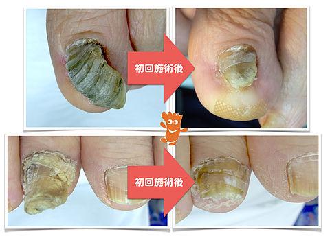 登米院の変形爪修復施術