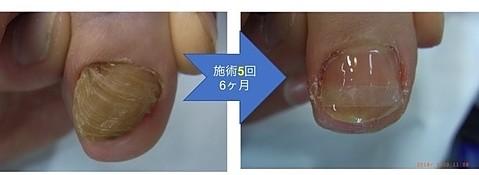 登米の変形爪修復施術2